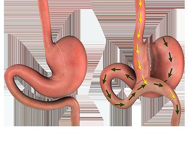 Omega Loop Bypass | Gastric Sleeve Surgeon | Sleeve